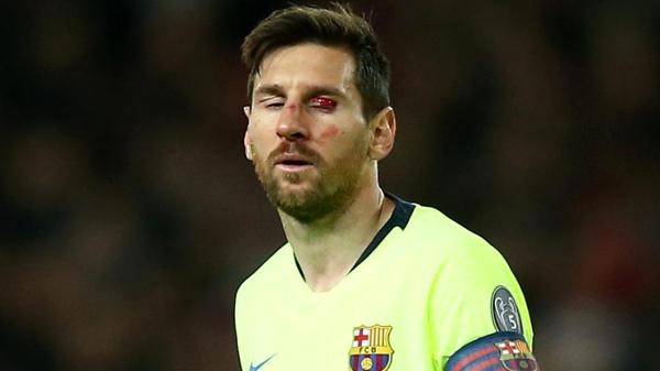 Messi tem rosto machucado durante partida do Barcelona na Liga dos Campeões. Foto: Jan Kruger - UEFA/UEFA via Getty Images/Via UOL